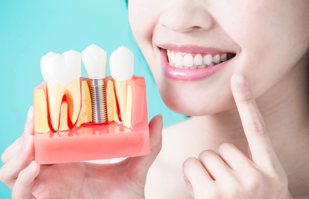 For Patients Who Are Missing Teeth