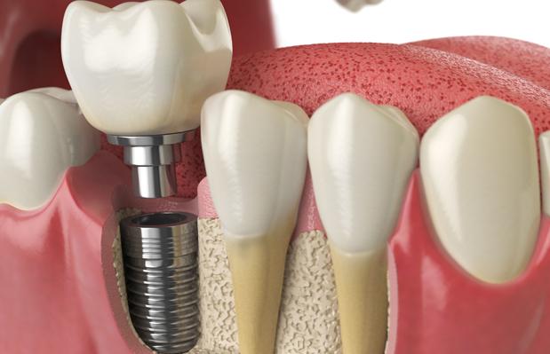 Understanding How Implants Work