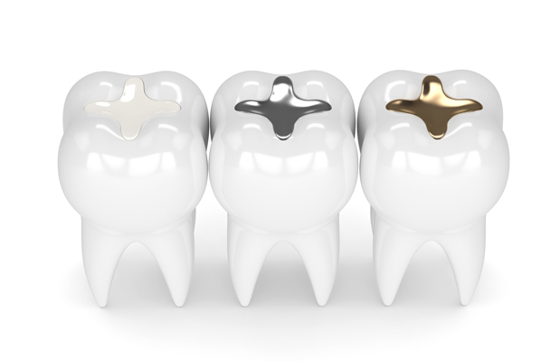 What Are Dental Fillings