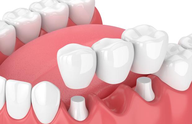 What Is A Dental Bridge 1
