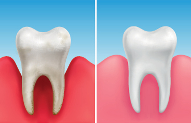 What Is A Periodontal Scaling And Root Planing